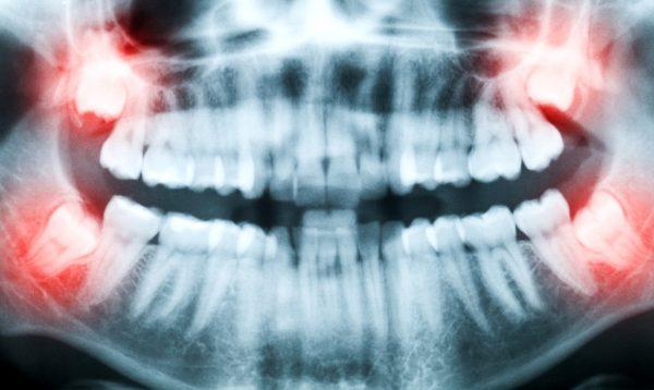 Стоматологическая процедура - кюретаж пародонтального кармана