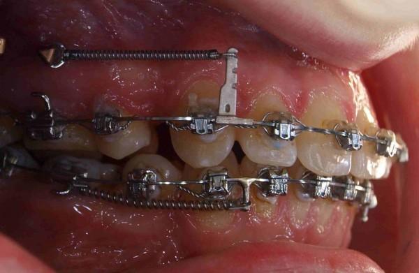 Применение микроимплантов - прорыв в ортодонтии