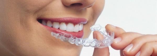 Ортодонтия - с чем ее едят?