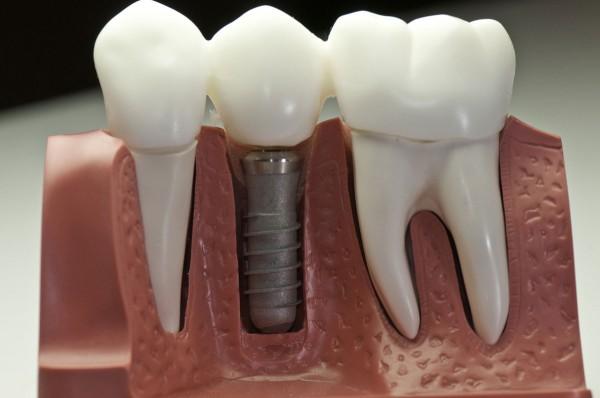 Применение имплантатов – новая эра в ортодонтии