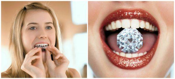 лучшее отбеливание зубов отзывы