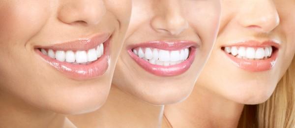С белоснежной улыбкой к успеху... или отбеливание зубов для девушек!
