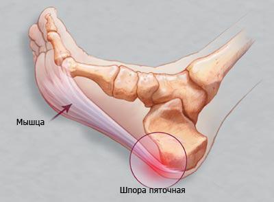 Симптомы, диагностика и лечение пяточной шпоры