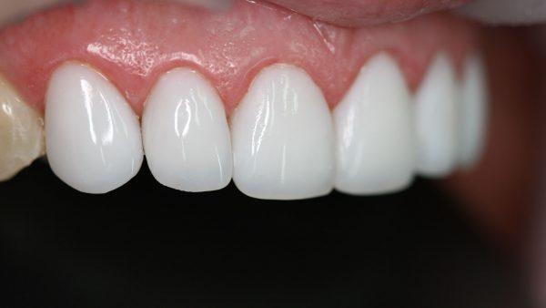 Востребованность профессионального отбеливания зубов