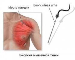 Биопсия мышц: всё, что Вы хотели знать