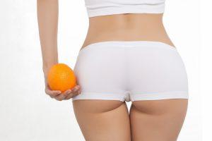 «Апельсиновая корка» на коже или как бороться с целлюлитом