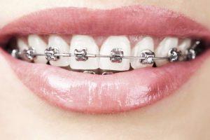 Стоматология. Признаки необходимости косметической стоматологии